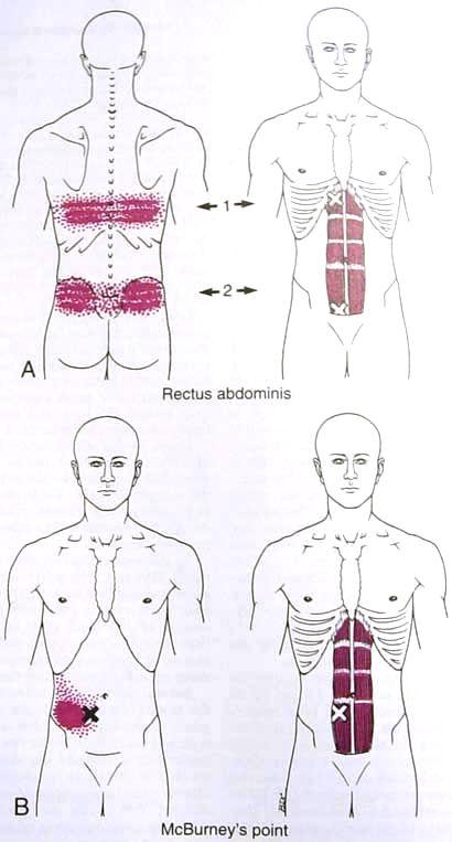 Abdominal Pain