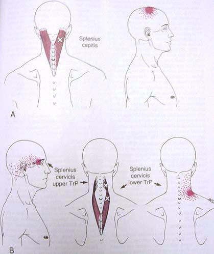 Headache Treatment Christchurch